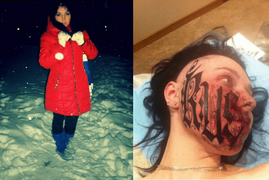 Russian girl got her boyfriend's name tattooed on her face. Before and after